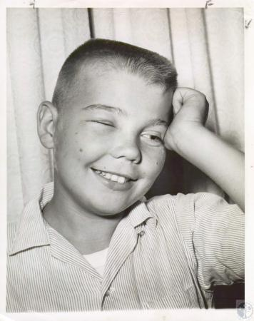 Image: di07849 - Tommy Schmidt stung by wasp