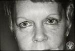 di97110 - Connie Woodrum, pre-op photo before cosmetic ...
